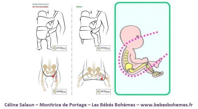 Soit maintenir le bébé en position grenouille et non avec les jambes  positionnées vers le bas lorsqu il est porté verticalement d4372d4d18d